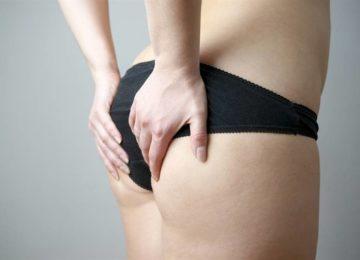 Fitness: Você conhece a Síndrome da Bunda Morta?