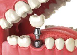 Luiz Pedro: Mais sobre as próteses dentárias