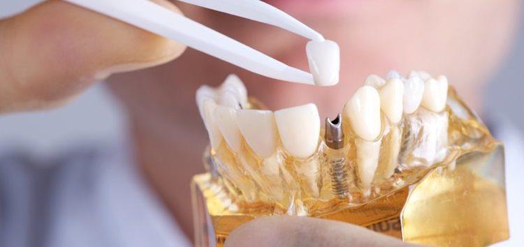 Luiz Pedro: A história dos implantes odontológicos