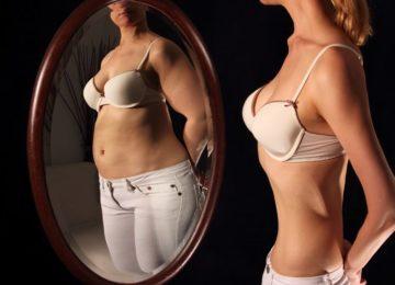Aparecida Miranda: Anorexia nervosa