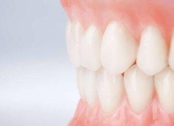 Luiz Pedro: Os dentes