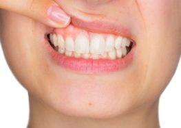 Luiz Pedro: Ligamento periodontal e a gengiva