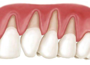 Luiz Pedro: Retração gengival e a sensibilidade dentinária