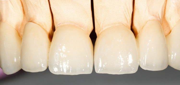 Luiz Pedro: A substituição de dentes