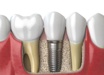 Luiz Pedro: Os implantes
