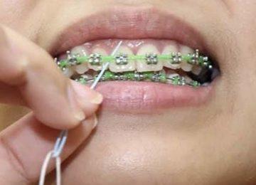 Luiz Pedro: A agulha passa fio dental