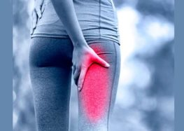 Carol Ragozzino: Síndrome do Músculo Piriforme