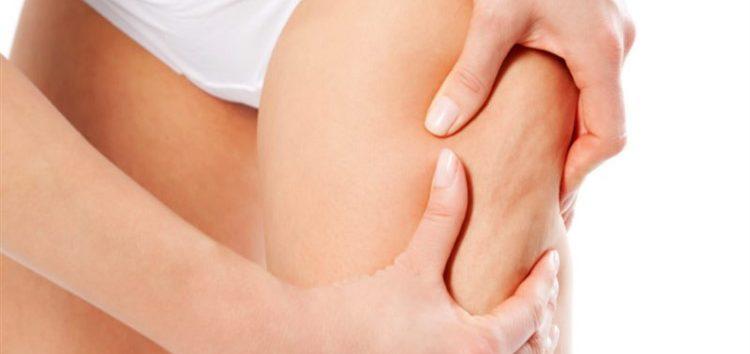 Carol Ragozzino: Conhecendo o tratamento da Celulite